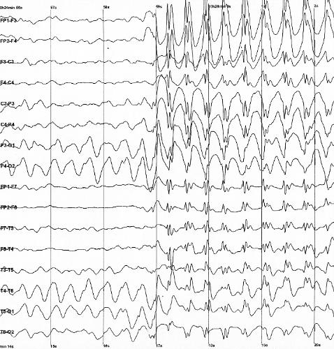 EEG of a petit mal seizure.