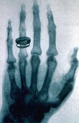 German physicist Wilhelm Rontgen took this X-ray during a public lecture in 1896. Public domain image.