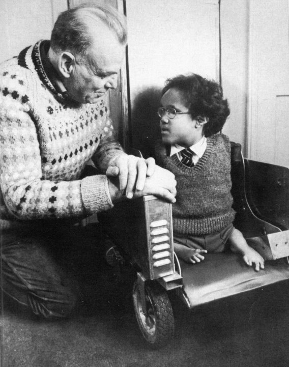 A young child with thalidomide-related phocomelia [3]