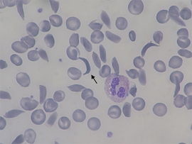 Blood smear showing both normal red blood cells and sickle cells.[6]